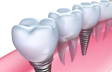 dental extraction in Fort Collins
